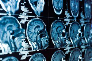 wearables y enfermedades cerebrales