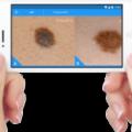 Aplicaciones para detectar el cáncer de piel