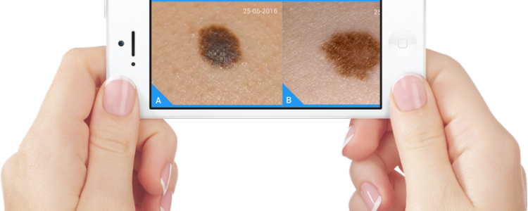 apps para diagnosticar cáncer piel