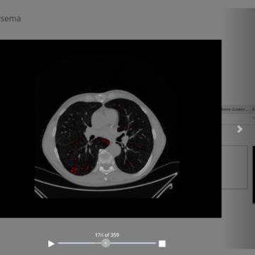 biopsias virtuales para detectar lo que el ojo no ve