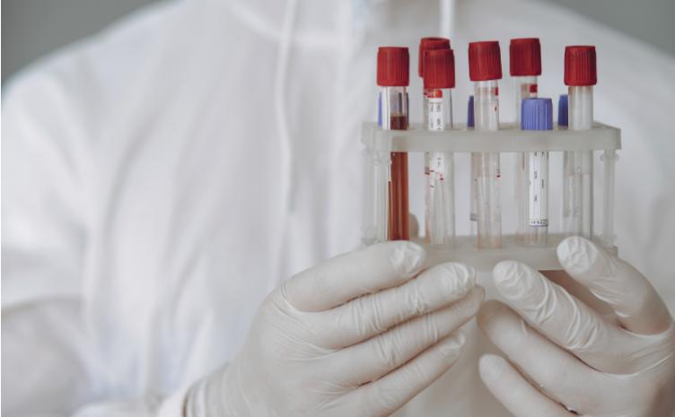 test diagnostico covid 19